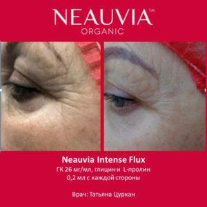 Коррекция периорбитальной зоны. Neauvia Intense Flux
