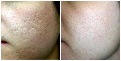 Результат удаления рубцов и шрамов - фото 2