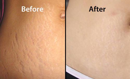 Результат удаления рубцов и шрамов - фото 5