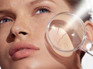 уход за чувствителньой кожей рекомендации 1